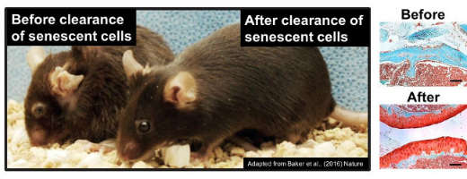 Before and After removal of senescent cells in mice