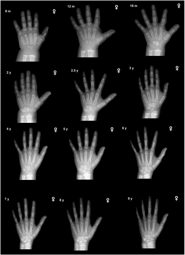 Bone Age 8 Mo To 9 Female