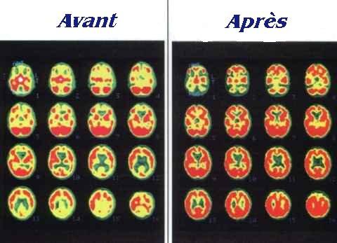 SPECT scan du cerveau d'une victime denoyade de trois-ans, prise peu de temps après l'accident, et 9 mois plus tard.