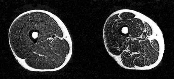 Sarcopenia seen by the magnetic resonance image (MRI) of a thigh cross section from a man age 25 and another age 65.